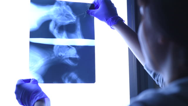 young beautiful female doctor examines the x-ray picture. - veterinarian stock videos & royalty-free footage