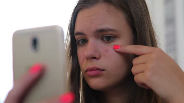 young girl looking at her front camera on mobile phone, and she's sad about her acne problem - irritation stock videos & royalty-free footage