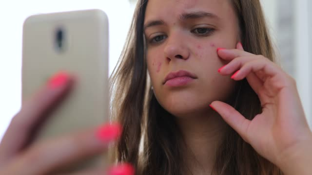 young girl looking at her front camera on mobile phone, and she's sad about her acne problem - displeased stock videos & royalty-free footage