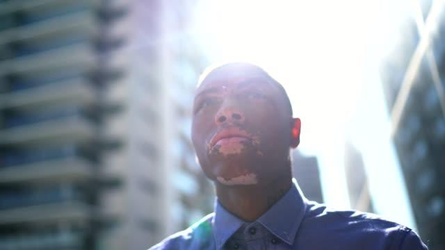 vídeos de stock, filmes e b-roll de jovem com vitiligo olhando para longe contemplando e pensando - coragem