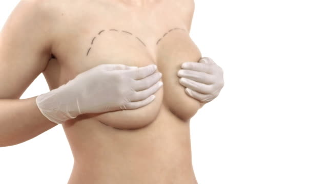 hd dolly: young woman hiding her breasts - breast augmentation stock videos and b-roll footage