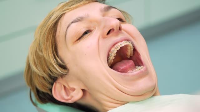 vídeos de stock, filmes e b-roll de jovem mulher com suportes nos dentista escritório - brace