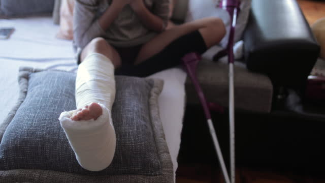 young woman with broken leg in orthopedic cast at home - human bone stock videos & royalty-free footage
