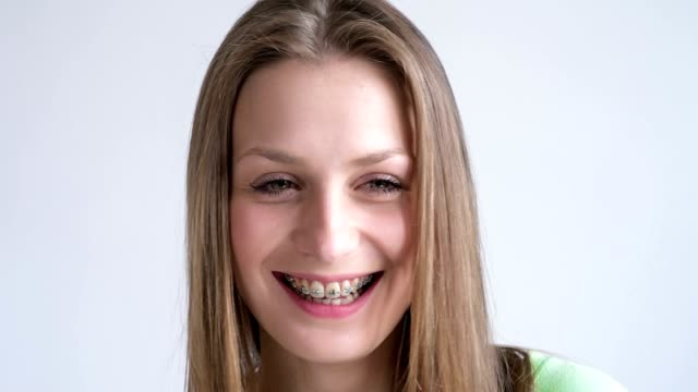 young woman with dental braces - suspenders stock videos and b-roll footage