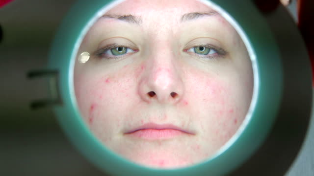 young women with problematic face on the medical examination - cystic fibrosis stock videos & royalty-free footage