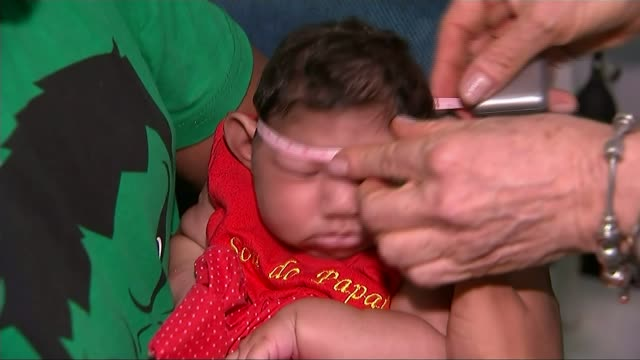 Holidaymakers warned that disease is expected to spread to Europe T29011611 / 2912016 Doctor measuring the head of a baby suffering from microcephaly