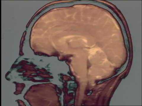 cgi zoom in to close up of human brain (cerebrospinal fluid) / birth of the brain - human brain stock videos & royalty-free footage